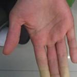 Hand-Arm-img2